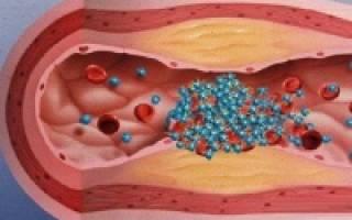Агрегация тромбоцитов: что это и какова норма?