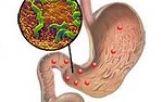 Причины и симптомы хеликобактериоза
