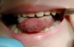 Глоссит – первые признаки и лечение