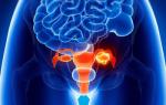 Функциональная киста яичника и желтого тела