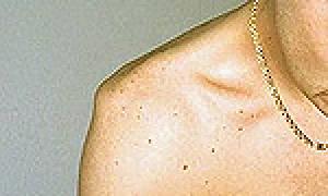 Вывих плеча (плечевого сустава)
