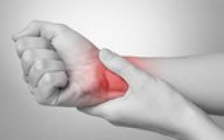 Периартрит: симптомы и лечение