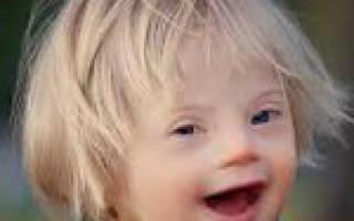 Причины и симптомы синдрома дауна
