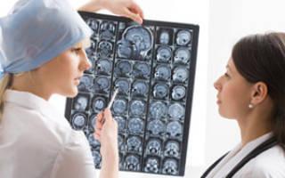 Как получить инвалидность при эпилепсии?