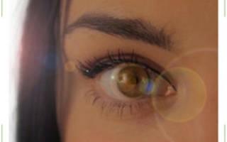 Плавающие чёрные и белые точки в глазах