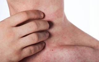 Стадии, симптомы и как лечить лишай у человека