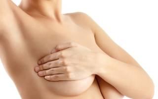Фибромиома молочной железы, узловая фибромиома