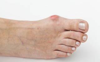 Боли в больших пальцах и в косточке на ноге (шишки)