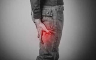 Воспаление (невралгия) седалищного нерва