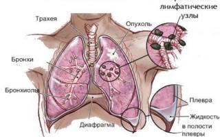 Признаки, симптомы, стадии и лечение рака легких