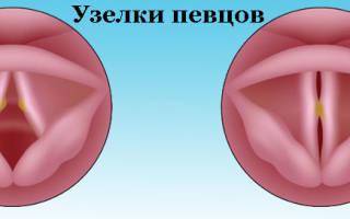 Узелки на голосовых связках