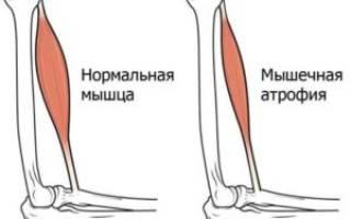 Причины и симптомы атрофии мышц ног, бедра и голени