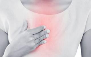 Признаки, симптомы, стадии и лечение рака пищевода