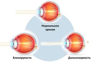 Другие методы восстановления зрения