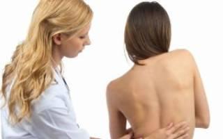 Методы лечения сколиоза