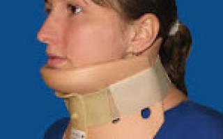 Перелом шеи (перелом шейного отдела позвоночника)