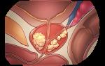 Рак простаты: симптомы, степени, стадии и лечение