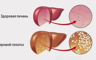 Симптомы и лечение острого жирового гепатоза