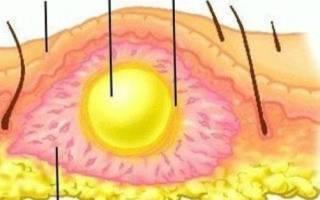 Симптомы и лечение флегмоны полости рта