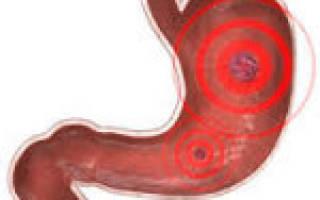 Причины и симптомы гастродуоденита