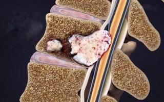 Метастазы рака в позвоночнике