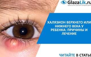 Халязион на глазу у детей (ребенка)