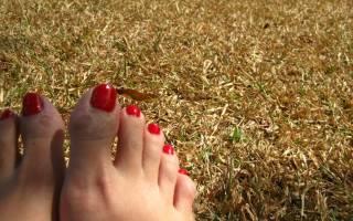 Мозоль на пальце ноги – причины и методы лечения