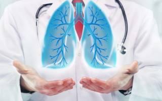 Симптомы и лечение двухстороннего воспаления легких