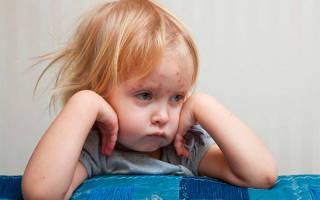 Последствия краснухи у детей