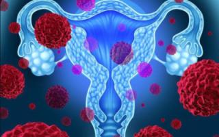 Причины, симптомы и лечение дисплазии шейки матки