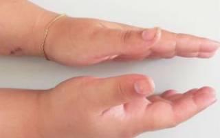 Вывих руки: что делать?