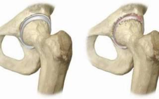 Асептический некроз костей и суставов