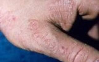 Симптомы и лечение микоза