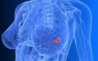 Причины, симптомы, стадии и лечение рака груди