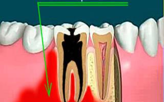 Одонтогенный остеомиелит челюсти