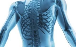 Что такое остеоартроз позвоночника?