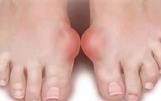 Шишки на ногах у большого пальца: причины и лечение