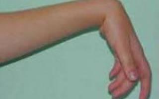 Нейропатия лучевого нерва