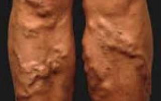 Причины, симптомы и осложнения варикоза