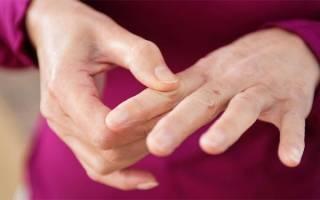 Болят суставы пальцев рук – что делать?