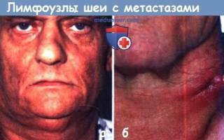 Метастазы на шее