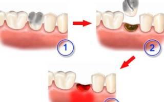 Альвеолит лунки после удаления зуба