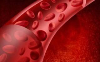 Причины, симптомы и лечение уплотнения аорты