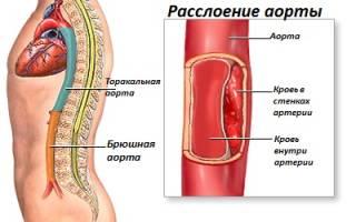 Причины, виды и симптомы расслоению аорты
