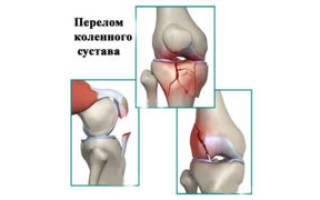 Перелом коленного сустава