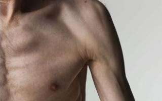 Причины и симптомы дистрофии