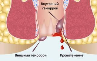 Кровотечение при геморрое, как остановить?