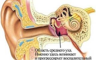 Причины, симптомы и лечение воспаления среднего уха