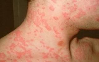 Почему появляются красные пятна на коже?