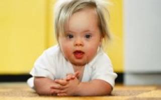 Синдром Дауна у новорожденных